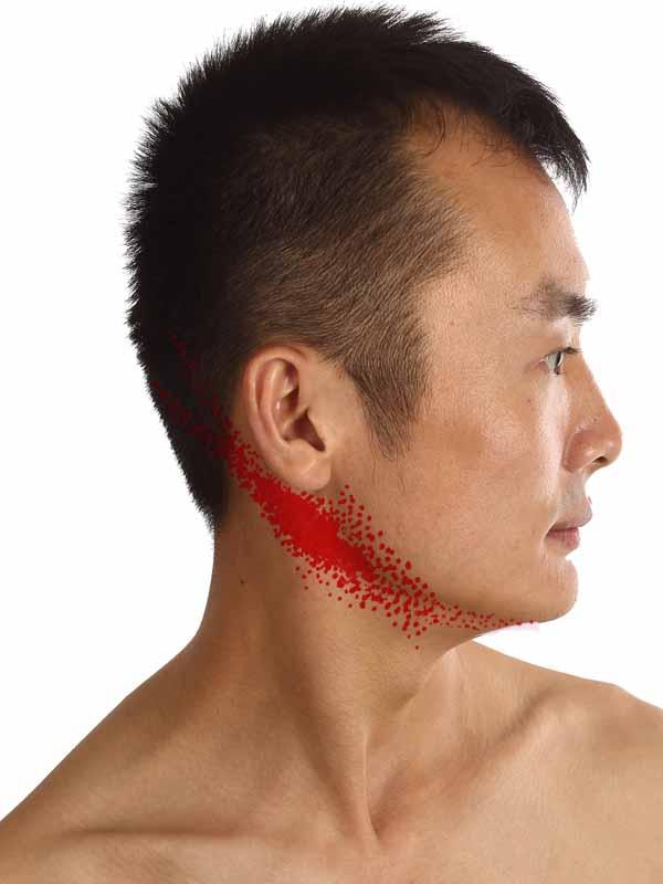 锁耳后淋巴结肿大-嘴巴 锁
